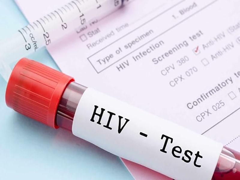ایدز چگونه منتقل میشود