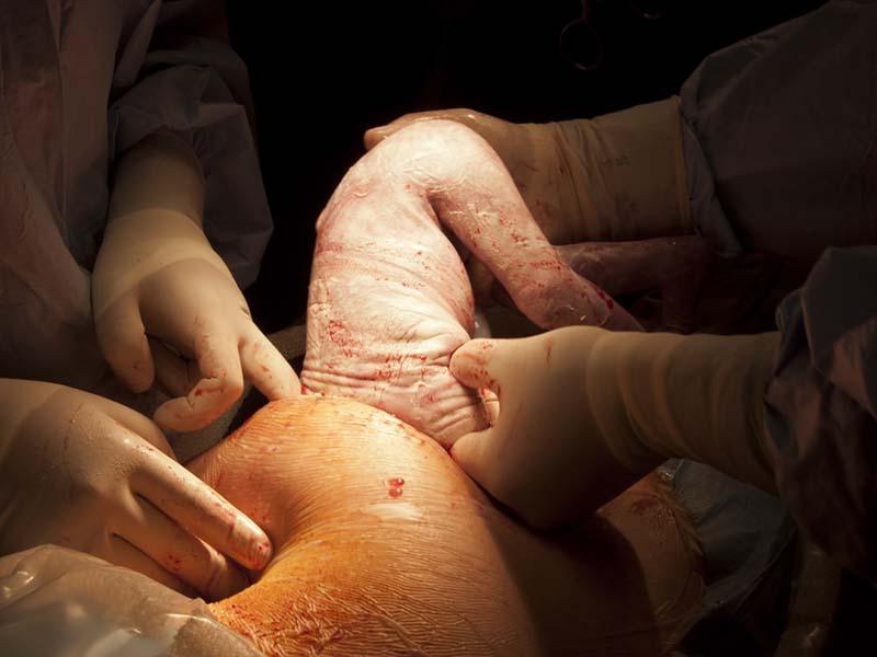 بهترین وضعیت جنین برای زایمان طبیعی