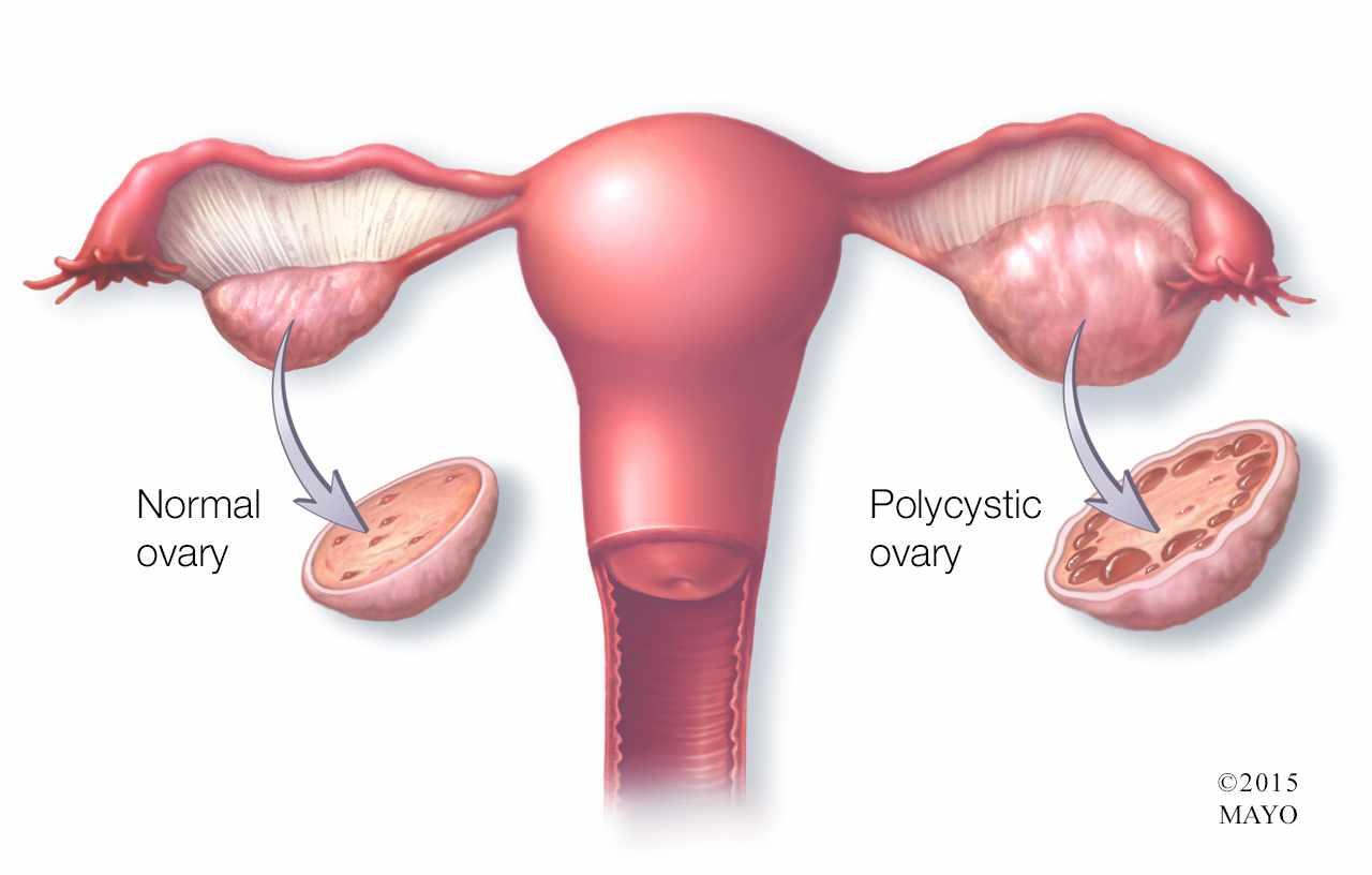 تیر کشیدن تخمدان