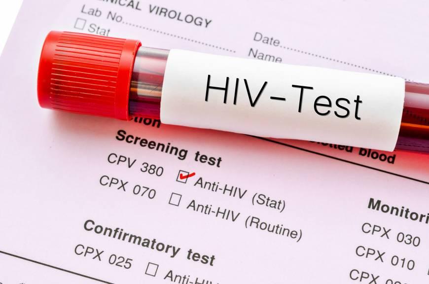 راه های انتقال ایدز
