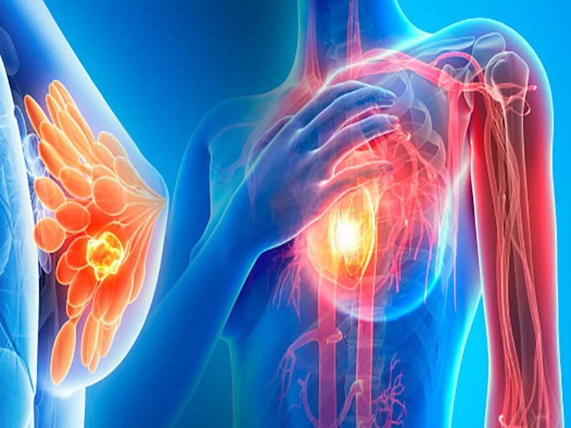عوامل موثر بر سرطان سينه
