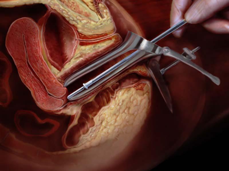عفونت باکتریایی واژن چیست