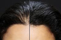 نازک شدن موی سر