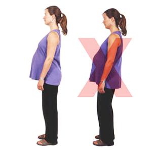 اصلاحات حرکتی در بارداری